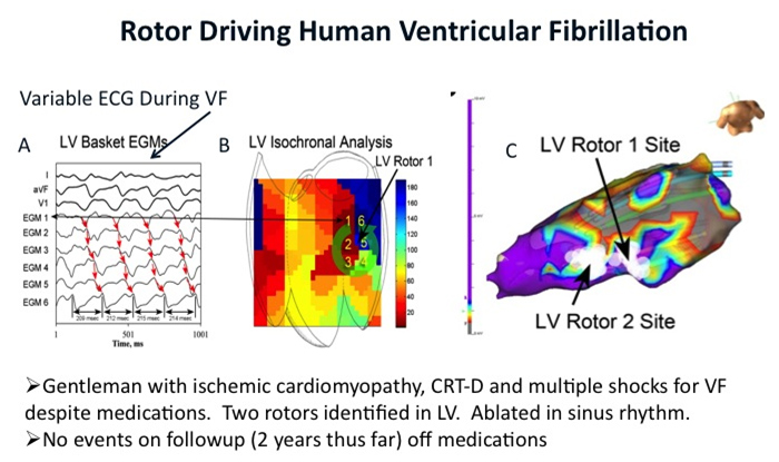 research-rotor-driving-human-ventricular-fibrillation