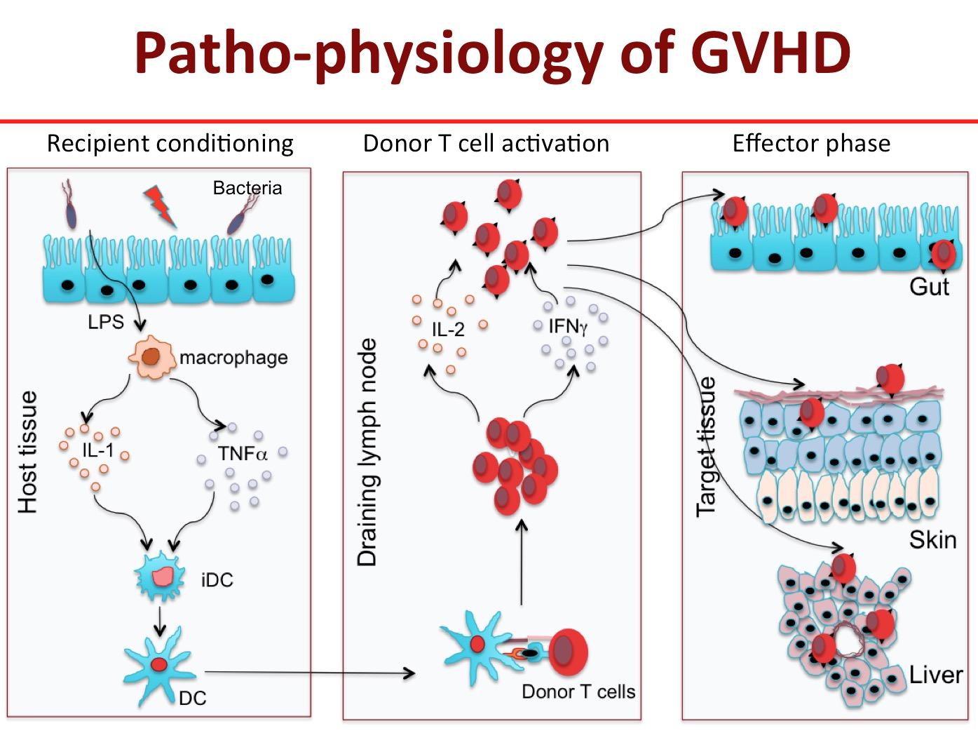 graft versus host erkrankung