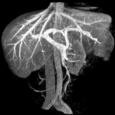 Portal and Hepatic Vein (Coronal maximum intensity projection images ...