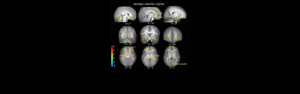 fMRI and the Neural Bases of Depression and Anxiety