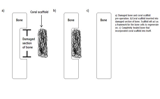 Bone Tissue Regeneration