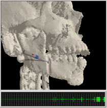 video<br /><br /><br /> of craniofacial surgical simulation