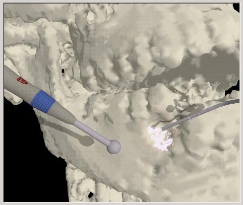 image of craniofacial surgical simulator with bone dust simulation