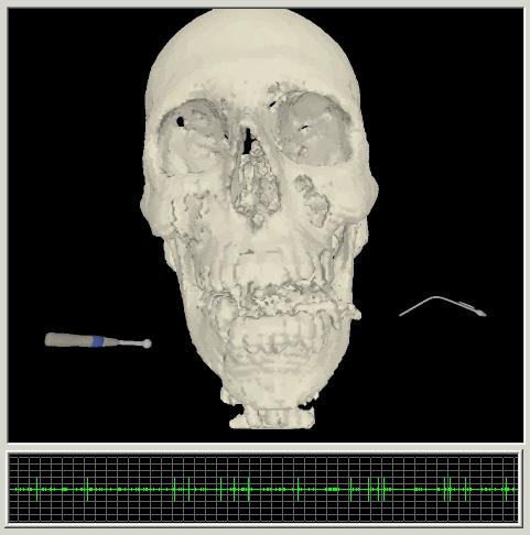 image of craniofacial surgical simulation
