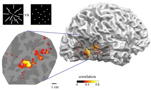 MT activation on cortical surface